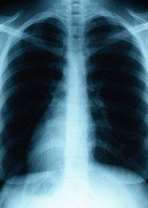 TipsfromTia.com Lungs